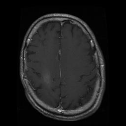 MRI taken September 9, 2008